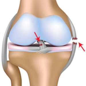 ACL reconstruction surgery in Germany