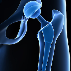 hip replacement surgery in Germany