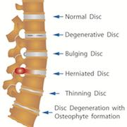 Spine surgery - Affordable hospitals in Germany